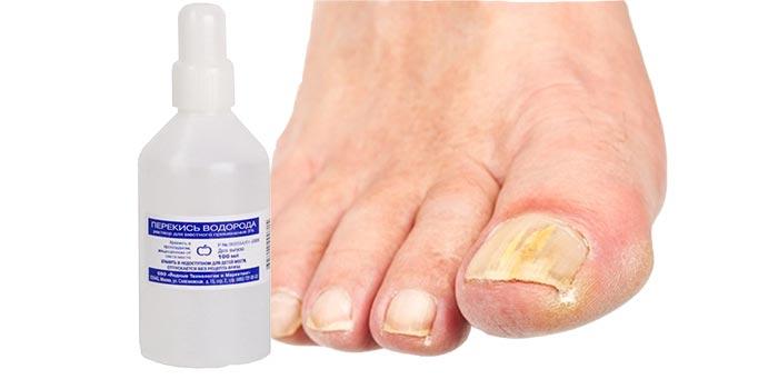 Эффективное средство от грибка на коже